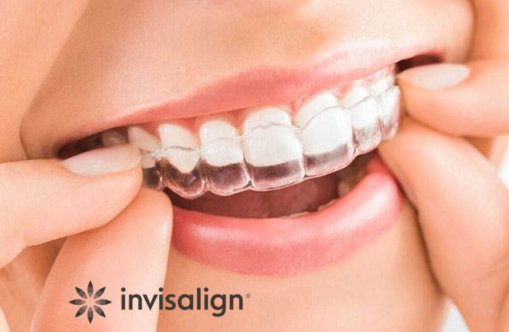 what-is-invisalign-720×470