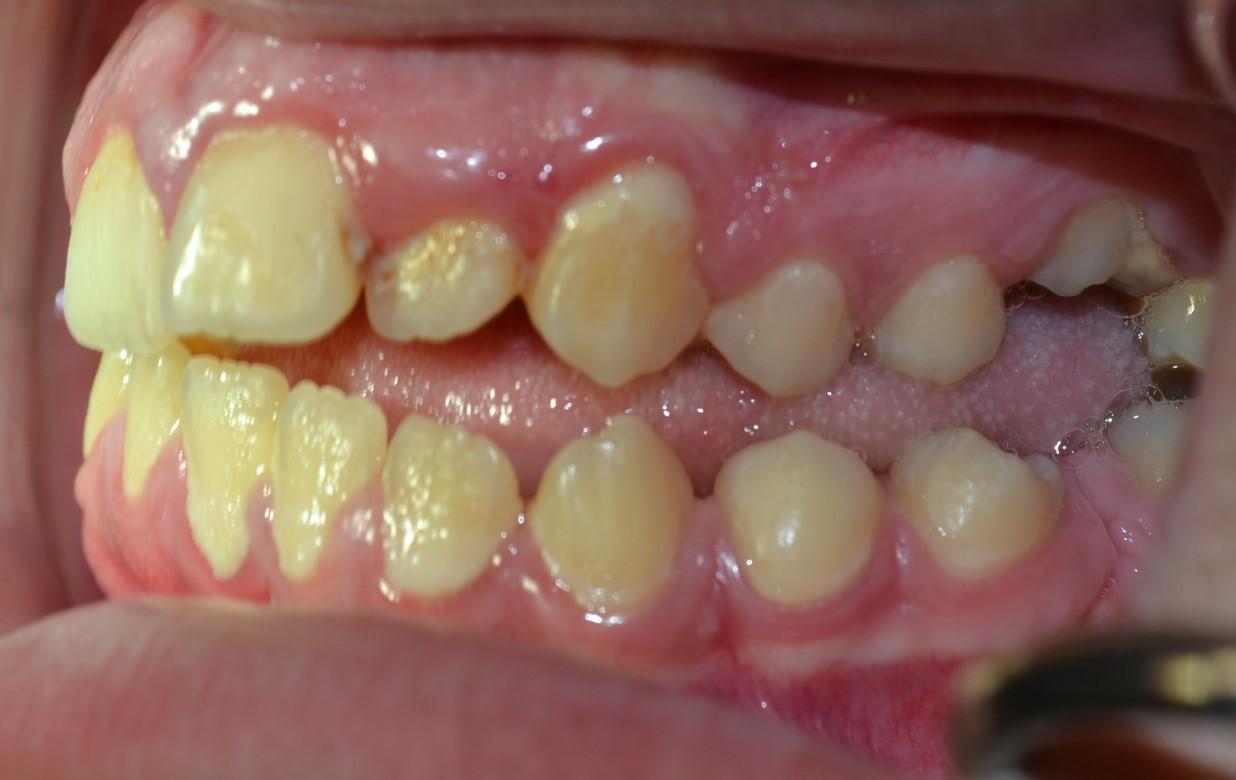 αγκυλωμενα-δοντια